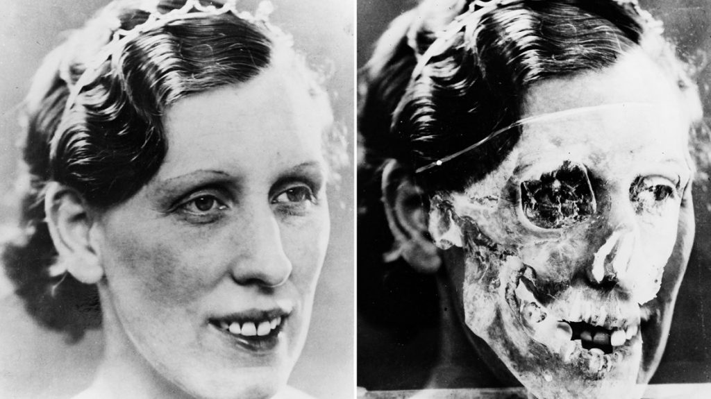 Portrait photograph of Isabella Ruxton (L) and James Brash's superimposition of the unidentified skull (R).